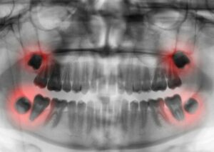 Wisdom teeth x-ray. X-ray technician interview questions.